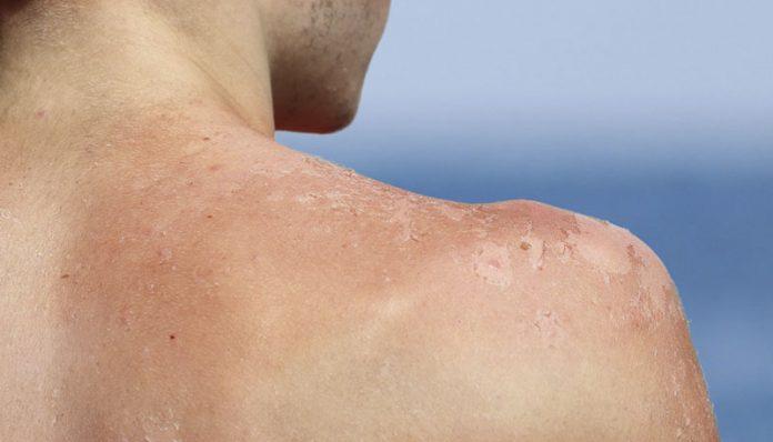 Câncer de pele mata mais homens