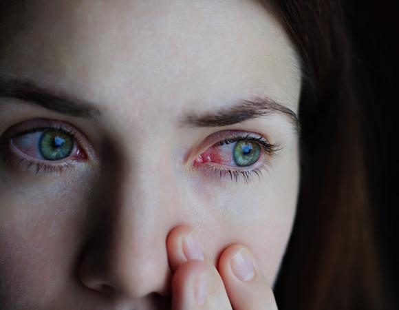 larva no olho