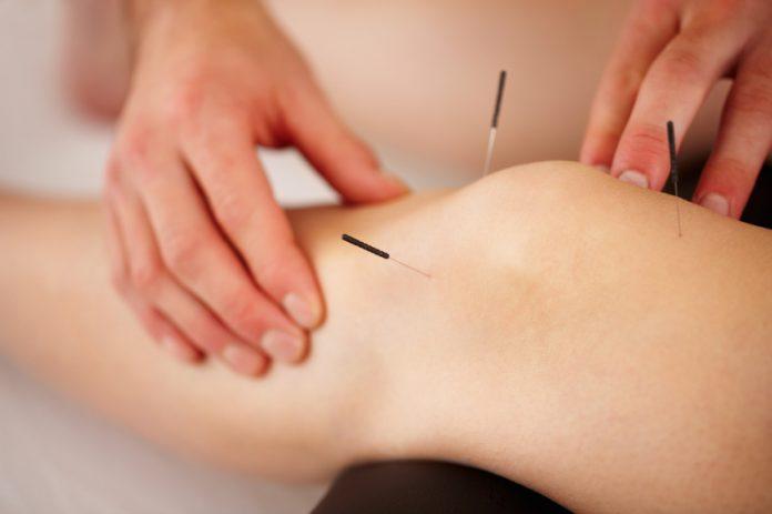 Benefícios da acupuntura